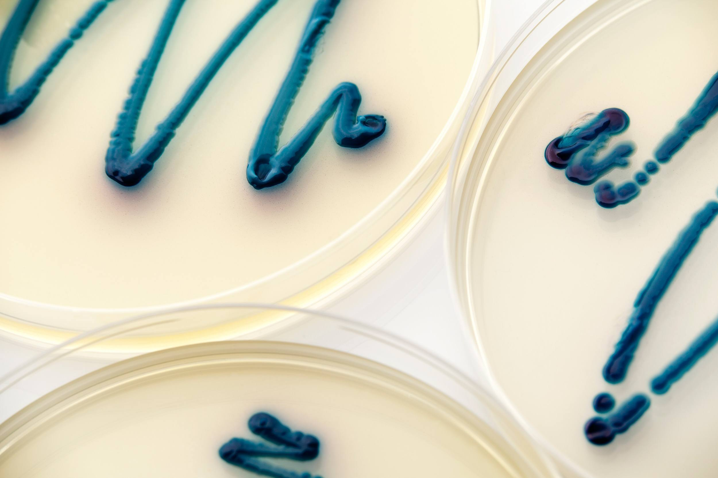 How To Use Next Generation Sequencing Ngs In Microbial Diagnostics Using Sequencers Plcsnet Interactive Q A